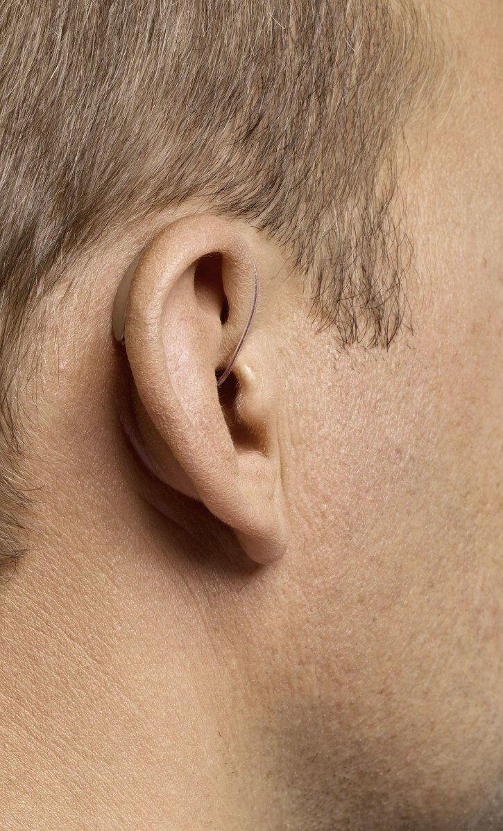 Hinter-dem-Ohr-Hörgerätetypen