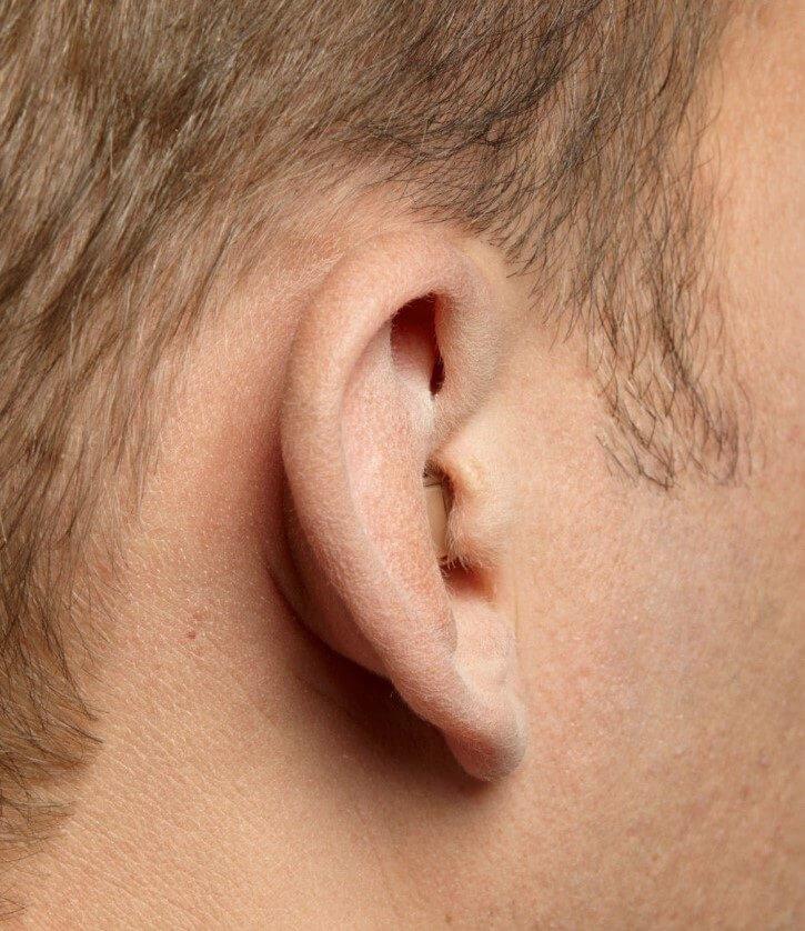 Im-Ohr-Hörgerätetypen CIC