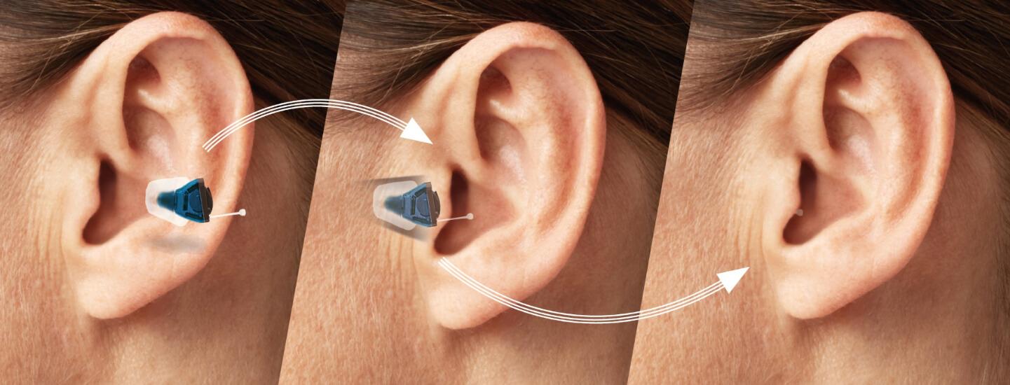 besondere hörgeräte angebot möckel